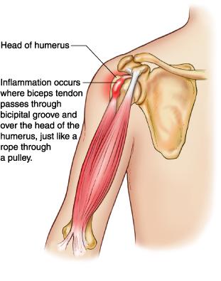 biceps%20tendonitis